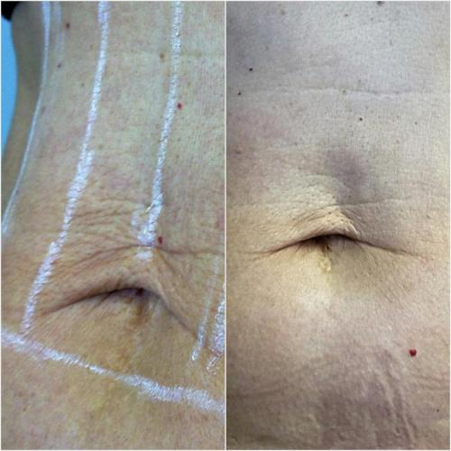 Ultherapy Treatment (stomach) –  180 days post treatment