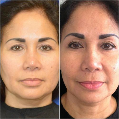 Ultherapy Treatment (full face) – 180 days post treatment