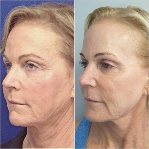 Ultherapy Treatment (full face & neck) & Chemical Peels – 180 days post treatment