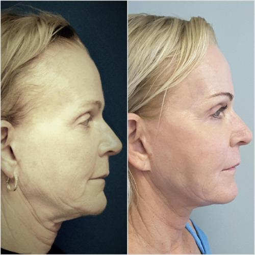 Ultra Therapy Treatment (Full face & Neck) & Chemical Peels – 180 days post treatment