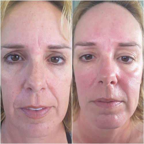 Microdermabrasion and chemical peel Treatment before and after