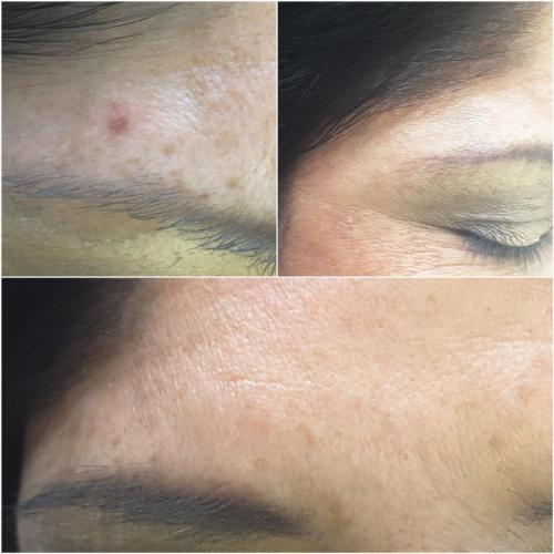 CryoCorrect Treatment – 2 weeks post treatment