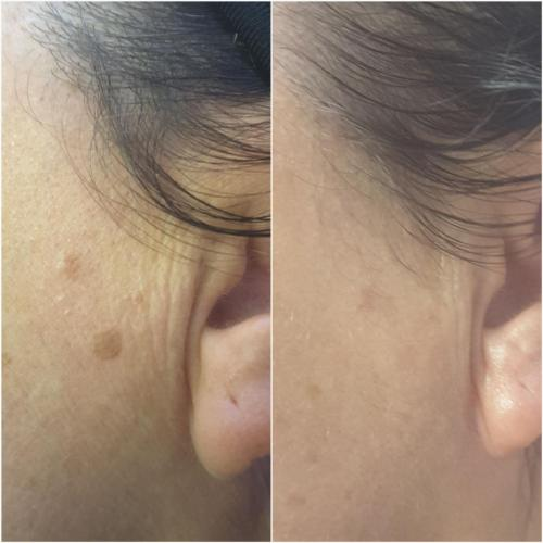 CryoCorrect (sun spot removal) – 6 weeks post treatment