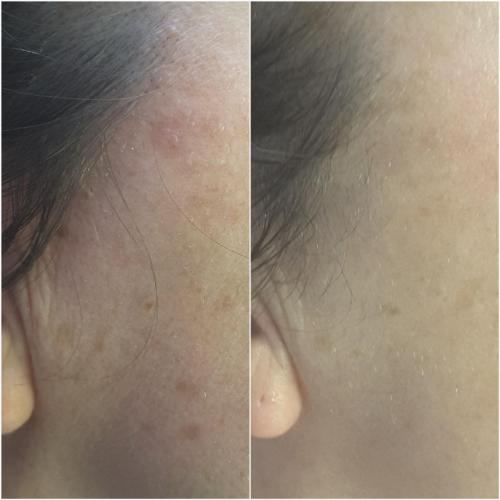 CryoCorrect Treatment (sunspot removal) – 6 weeks post treatment
