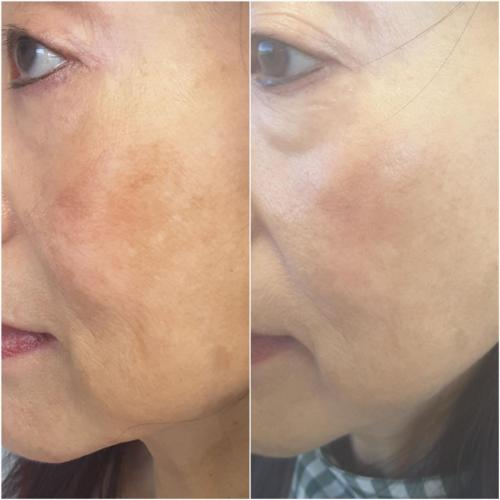 ZO Pigment Control Products & ZO Stimulating Peel – 4 months post treatment